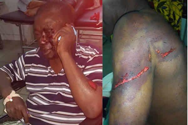 Nana Kwasi Agyemang IX was brutalised by men allegedly hired by Nana Hema Dekye