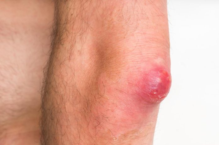 Boils: Home remedies to get rid of this condition in no time 2