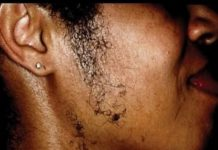 File photo: Woman with facial hair