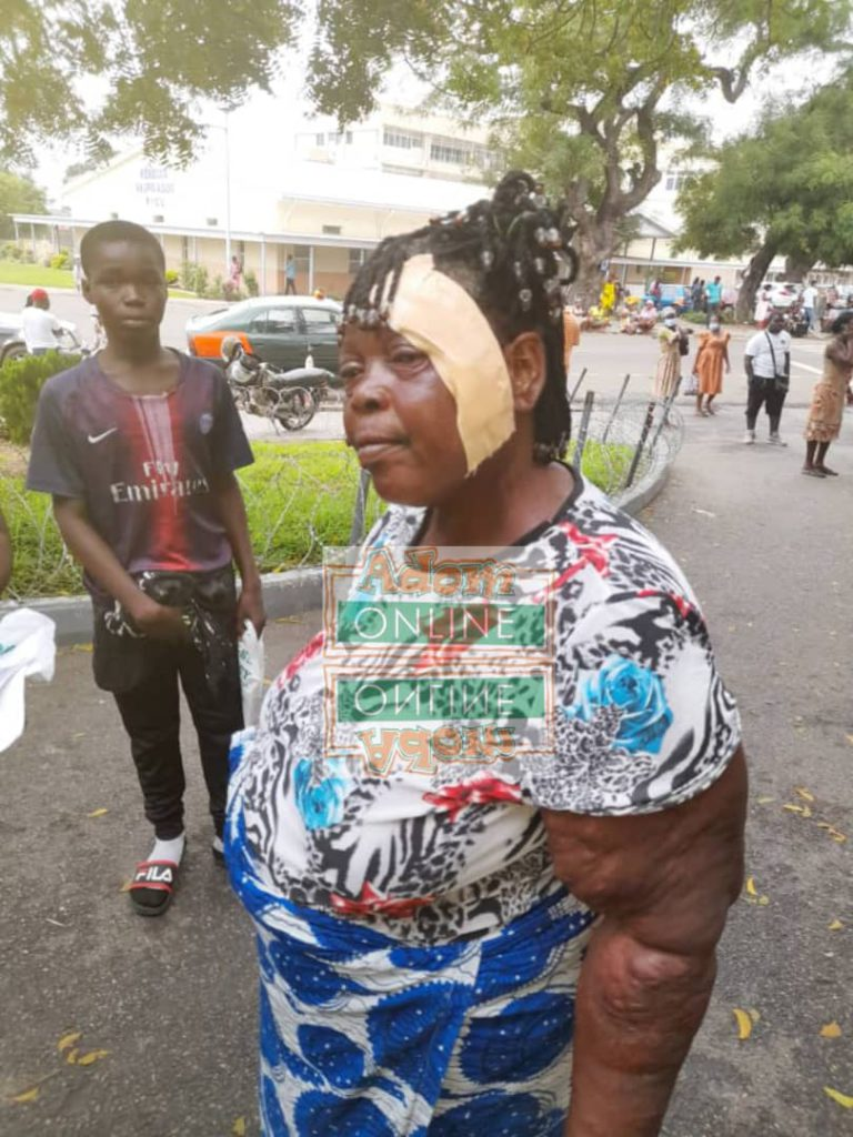Injured person after NDC, NPP clash at jamestown