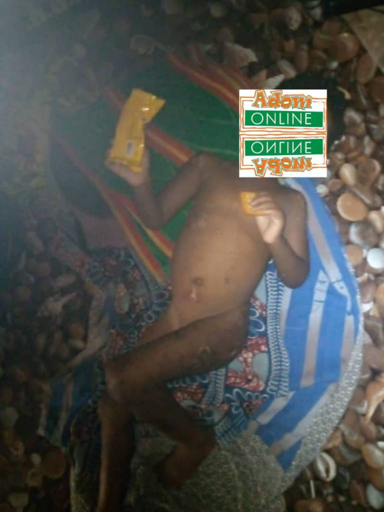 Father allegedly burns his 3-year-old daughter [Photos]