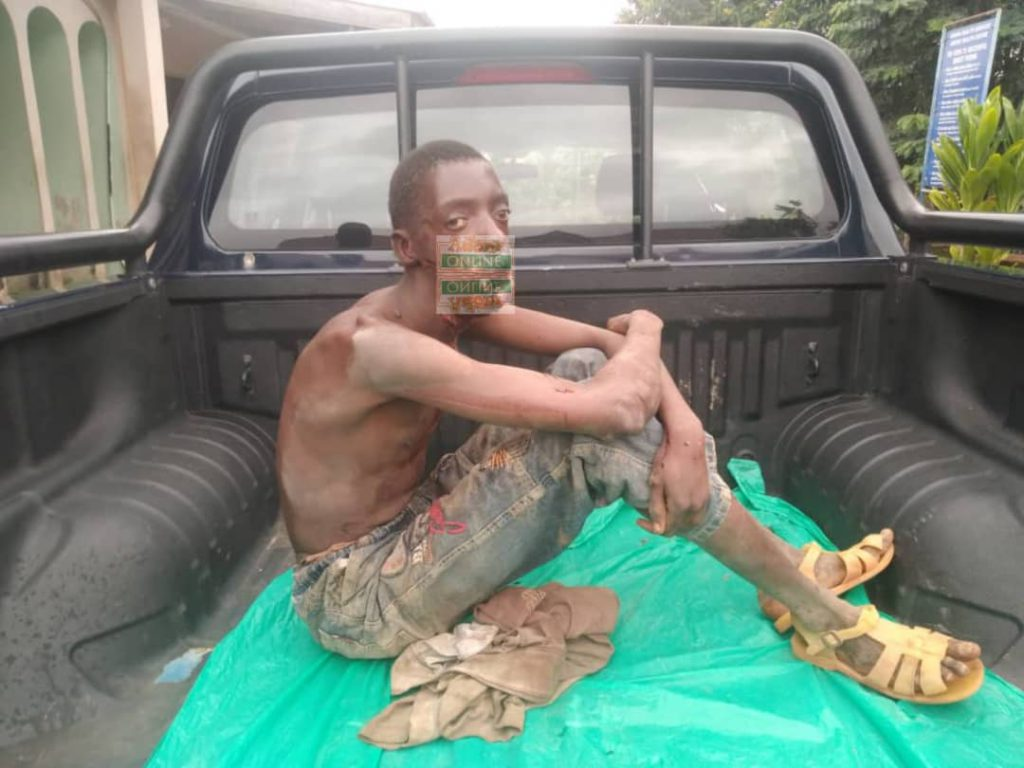 Bizarre: Man appears at 'okada' station with missing tongue at Adeiso- (Photos). 51