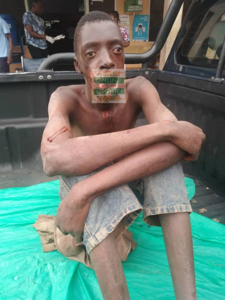 Bizarre: Man appears at 'okada' station with missing tongue at Adeiso- (Photos). 52